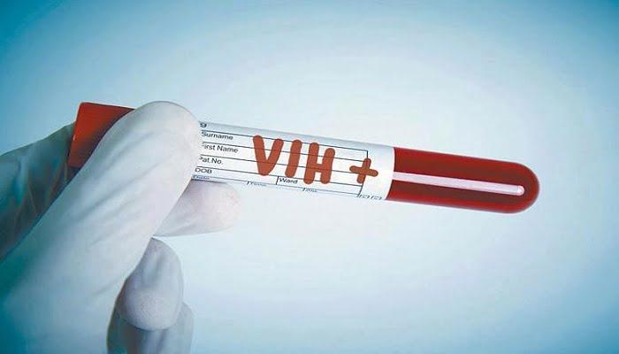 Nuevo chip que detecta el VIH en la primera semana de infección
