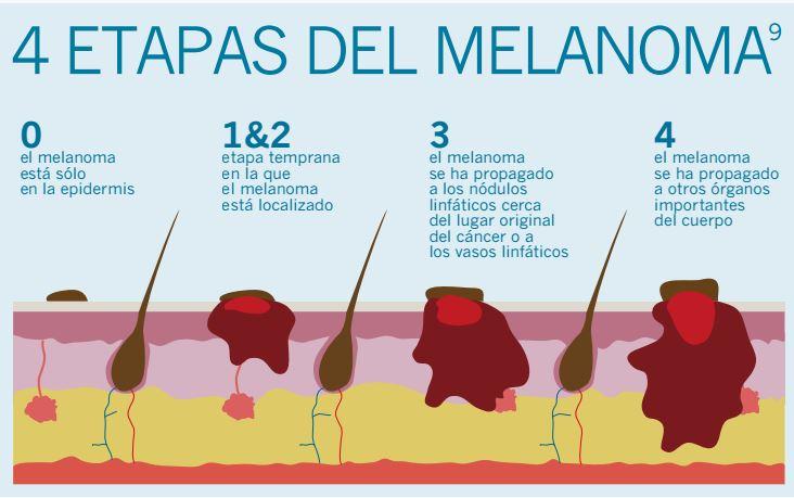Novedoso tratamiento para el melanoma aprobado por el Invima