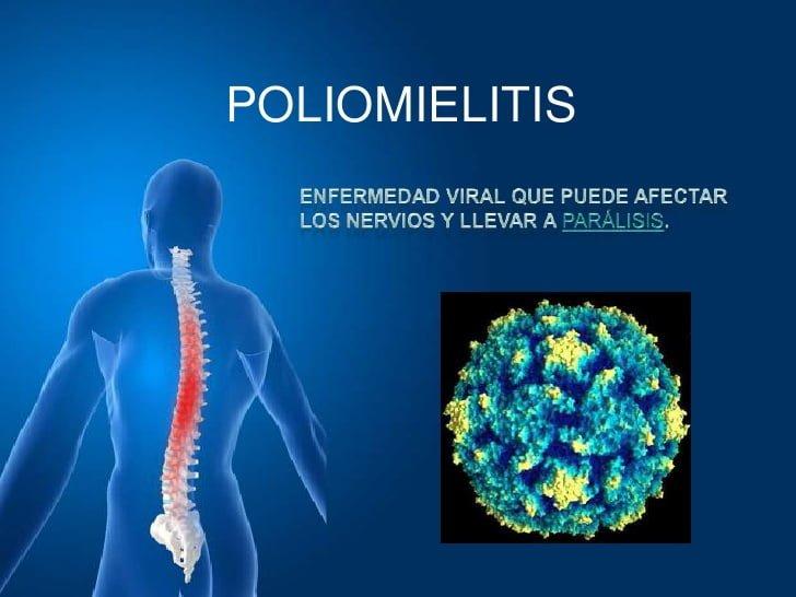 ¿Qué es la poliomielitis?