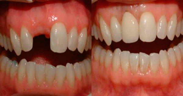 Importante avance médico: cómo hacer crecer los dientes nuevamente