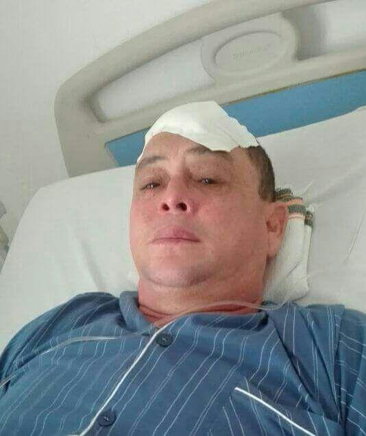 """Se recupera de un ataque a machete, Miguel el """"Mono"""" López"""