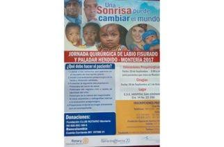 Jornada gratuita de cirugías de labio fisurado y paladar hendido en Montería