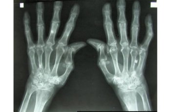 Artritis reumatoide: una de las causas más comunes de discapacidad y pérdida de empleo