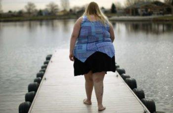 EPS deberán realizar cirugías de Bypass en pacientes con obesidad mórbida por orden de la Corte