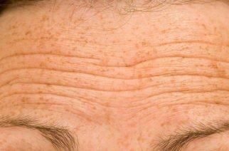 Arrugas en la frente podrían alertar sobre problemas cardiovasculares