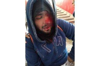 Estudiante perdió un ojo en enfrentamiento durante manifestaciones