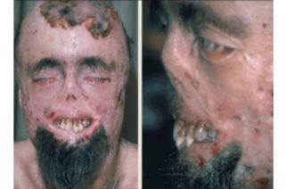 A propósito de enfermedades raras… ¿Conoces el mal del vampiro?