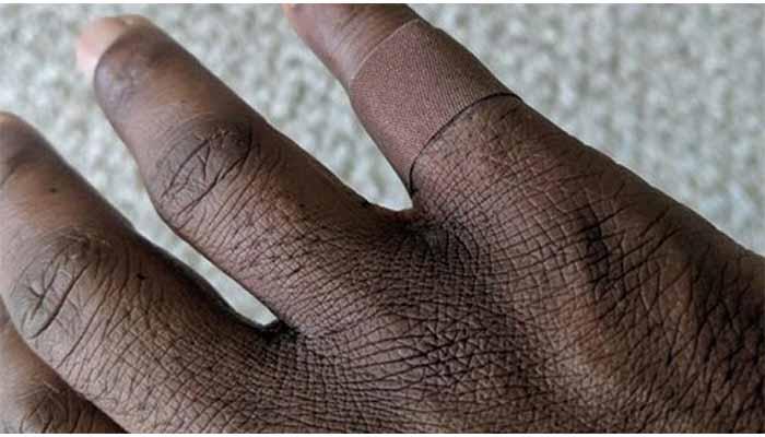 Lo emocionó la simpleza: Hombre afro  se regocijó al hallar una curita de su color de piel