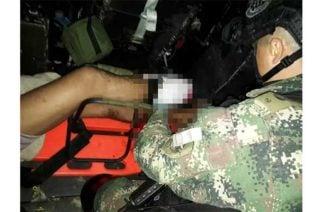 Menor de 16 años resultó herido con mina antipersona en zona rural de Puerto Libertador
