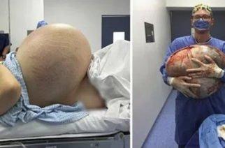 ¡Insólito! Un tumor de 60 kilos fue extraído del ovario de una mujer