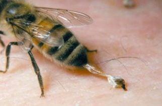 De gravedad dos hombres al ser atacados por abejas africanas mientras cortaban unos árboles en Momil