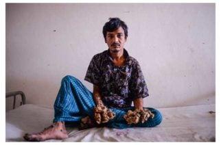 Hombre árbol: el calvario de una rara enfermedad