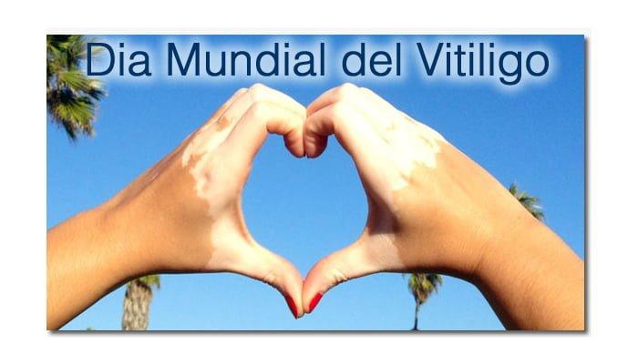 Hoy se conmemora el Día Mundial del vitiligo
