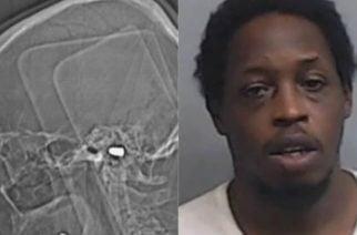 Recibió un balazo en la cabeza y se dio cuenta un mes después
