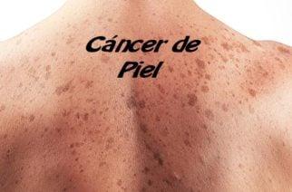 Nuevo tratamiento permitirá que el 52% de los pacientes con cáncer de piel sobrevivan al menos cinco años