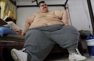 ¡Increíble! Más de 300 kilos adelgazó el hombre más obeso del mundo