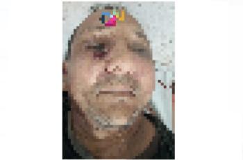 Sigue la violencia en el San Jorge: A bala asesinaron a un hombre en Montelíbano